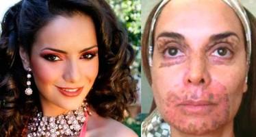 Le queman el rostro a reina de belleza en tratamiento de dermoabrasión