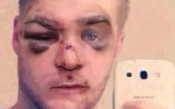 Joven recibe paliza por golpear brutalmente a su perro.