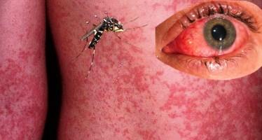 Hay más de 20 mil casos de zika en Colombia; son casi 2 mil embarazadas