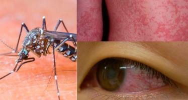 Aumenta la epidemia de zika; más de 13 mil infectados en Colombia