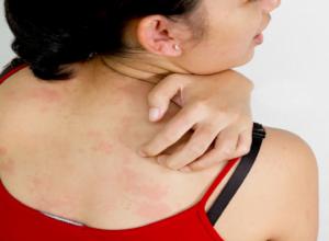 Síntomas por zika
