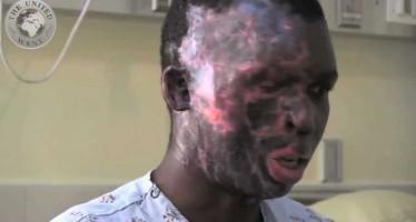 Umar Mulinde, cristiano desfigurado en el rostro por musulmanes debido a sus creencias