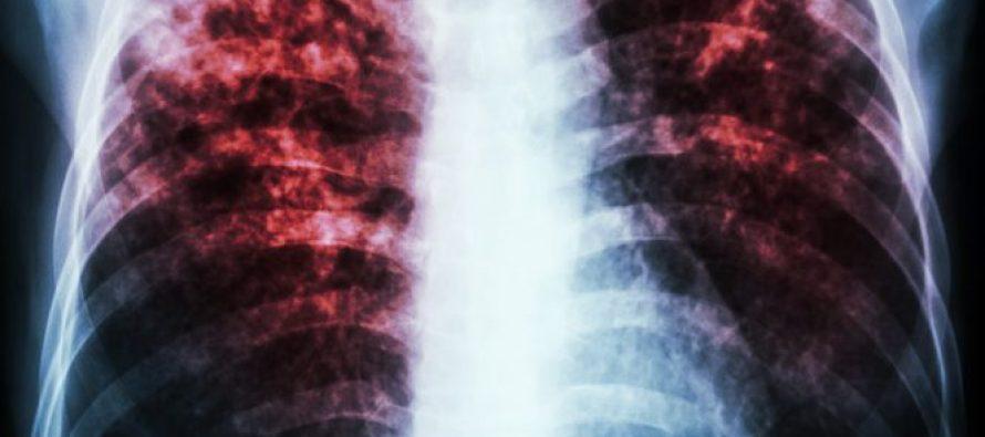 Epidemia mundial de tuberculosis, más grave de lo pensado: OMS