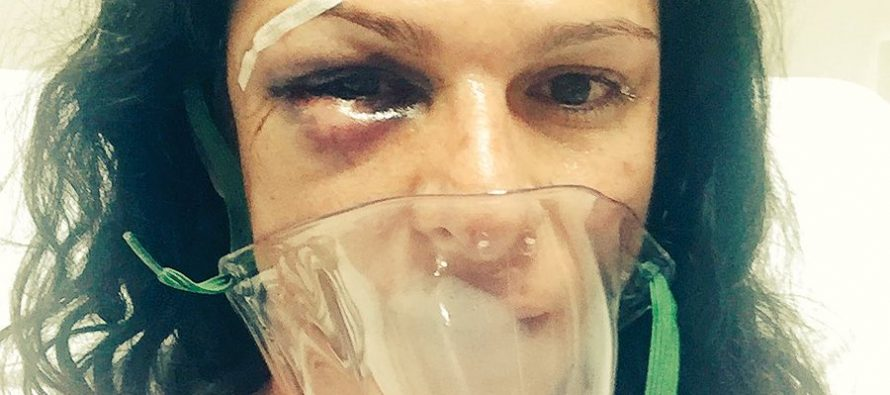 Golpean brutalmente a Ana Gabriela Guevara en la carretera México- Toluca