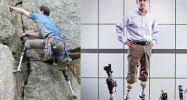 Técnica quirúrgica podría hacer que usuarios 'sientan' sus extremidades protésicas
