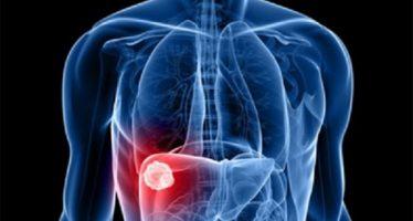 Fomentan en Tijuana tomar medidas preventivas contra hepatitis