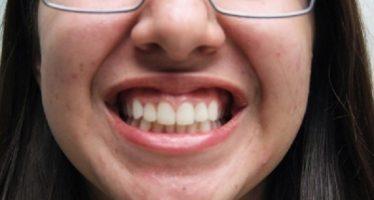 Estrés y ansiedad, factores que causan rechinido de dientes