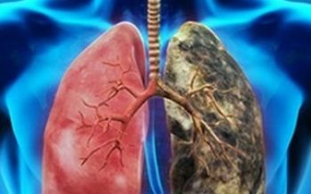 Cáncer de pulmón de células no pequeñas afecta más a mujeres sin tabaco